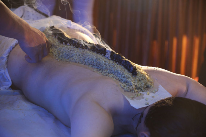 china acupuncture TCM - moxibustion
